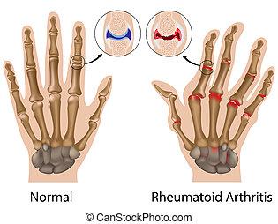 手, 關節炎, 類風濕病, eps8