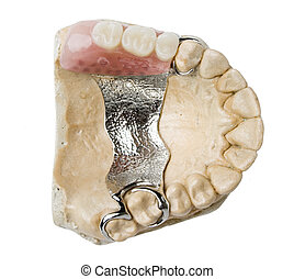 牙齒, 取代