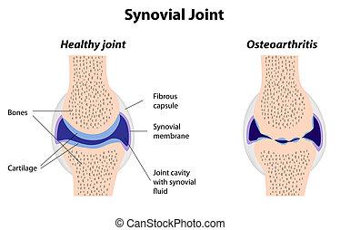 關節炎, 聯接, synovial, 正常